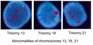 Deteksjon av kromosomfeil ved bruk av FISH-teknikk. (bilde fra medscape.com)